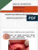 Hiperplasia fibrosa inflamatoria