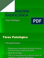 Exploración Radiológica Torax Patológico