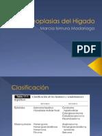 12 - Neoplasias Del Hígado