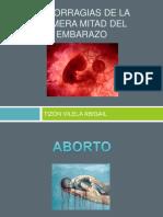 206366376 Hemorragias de La Primera Mitad Del Embarazo 140211094627 Phpapp01