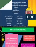 Angina de Pecho (2)