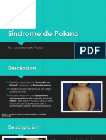 Síndrome de Poland