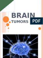 Brain Tumors PPT