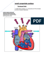 Anomalii congenitale cardiace