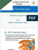 Sx Del Tunel Del Carpo