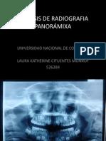 agenesia dental radiografia