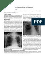 Recurrent Spontaneous Pneumothorax in Pregnancy