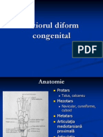 Piciorul Diform Congenital