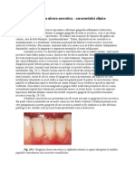 Parodontita Ulcero-necrotica - Caracteristici Clinice (Clinical Periodontology and Implant Dentistry, Fifth Edition, Lindhe)
