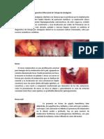Diagnostico Diferencial de Tatuaje de Amalgama