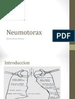Neumotorax.- Adrian Duran Alcocer