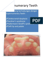 Supernumerary Teeth