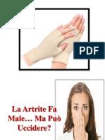 Artrite Deformante, Artrite Artrosi Differenza, Artrite Della Mano, Artrite Infantile Sintomi