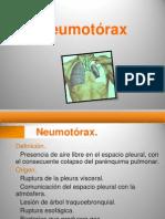 7 neumotorax