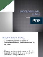 Patologias Del Riñon