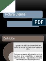 Rotura uterina