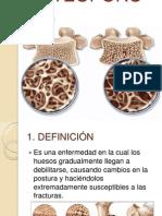 Osteoporosis Diapositiva