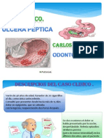 Caso Clinico-ulcera Peptica .
