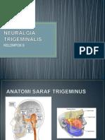 Neuralgia Trigeminalis Ppt