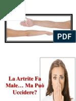 Artrite Reumatoide Diagnosi, Artrite Autoimmune, Artrite Diagnosi, Artrite Mani Sintomi