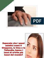 Artrite Mani, Artrite Cervicale, Artrite Gottosa Acuta, Artrite Idiopatica Infantile