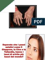 Artrite Reumatoide Mani, Artrite Cervicale Sintomi, Artrite Gottosa Dieta, Artrite Mandibolare