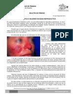 14/05/14 Afecta Lupus a Mujeres en Edad Reproductiva