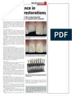 A New Advance in Composite Restorations