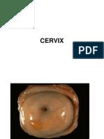 Lecture Cervix