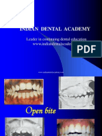 Open Bite Sem [Recovered] / orthodontic courses by Indian dental academy