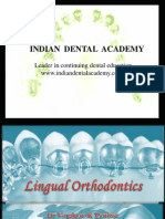 Lingual Orthodontics / orthodontic courses by Indian dental academy