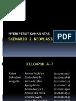 Ppt Skenario 2 Neoplasia