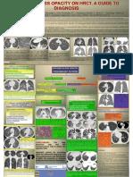 Opacidades de Vidrio Deslustrado-Guia Diagnostica