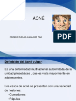 Acne Juanjose