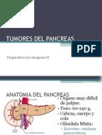 tumores pancreaticos