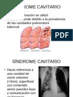 SÍNDROME_CAVITARIO