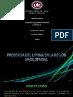 Presencia Del Lipoma En La Región Maxilofacial