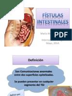 Fístulas Intestinales.pptx
