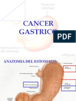 Introduccion de Cancer Gastrico