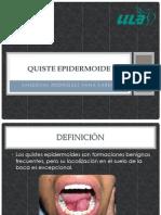 Quiste epidermoide