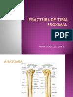 Fractura de Tibia Proximal