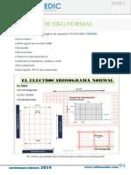 3. EKG Normal