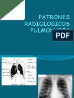 PATRONES RADIOLOGICOS PULMONARES