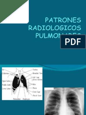 Imagenes radiologicas de edema pulmonar