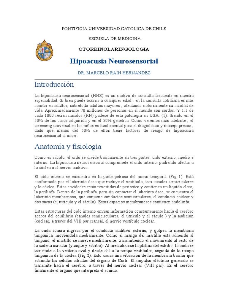 Hipoacusia-Neurosensorial