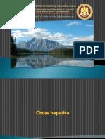 Ciroza Hepatica