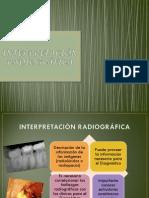 Enoki Interpretación Radiográfica