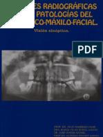 Imágenes Radiográficas de Las Patologías Del Área Buco-Maxilofacial