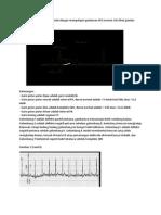 Memahami EKG Dapat Kita Mulai Dengan Mempelajari Gambaran EKG Normal