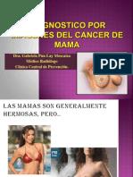 Diagnostico Por Imagenes Del Cancer de Mama